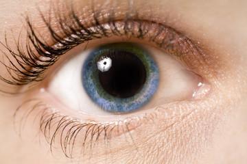 pupile dilatate la un examen ocular