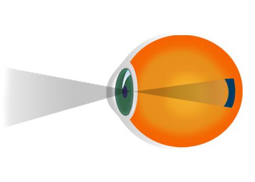 miopia este cauzată