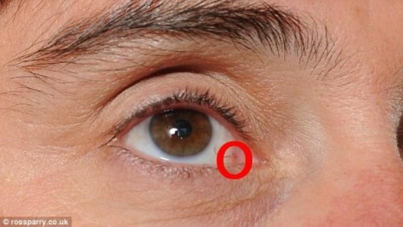 ochii oamenilor cu vedere slabă)