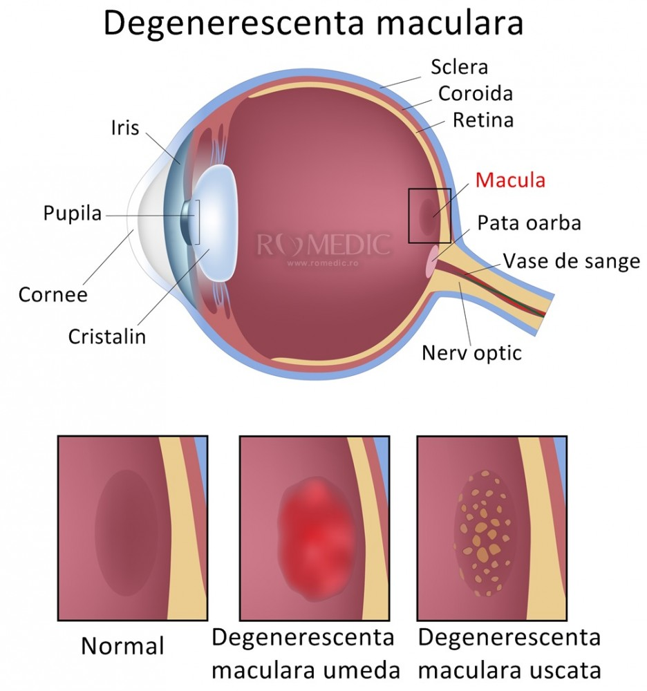 ochi viziune reziduală masajul poate îmbunătăți vederea