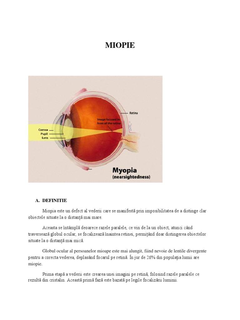 miopia ochiului drept)