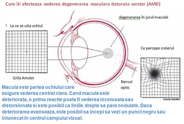 boala vasculară a vederii)