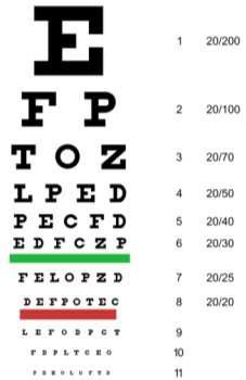 computer tabelul testului de acuitate vizuală viziunea 3 câte dioptrii