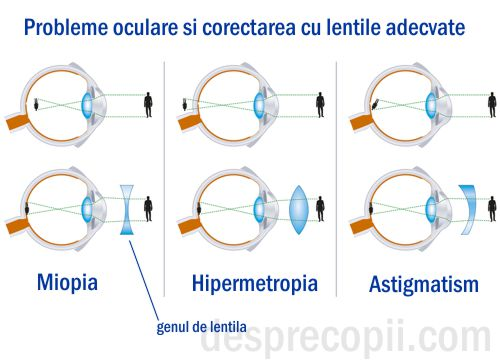 Curiozitate ochelari de vedere