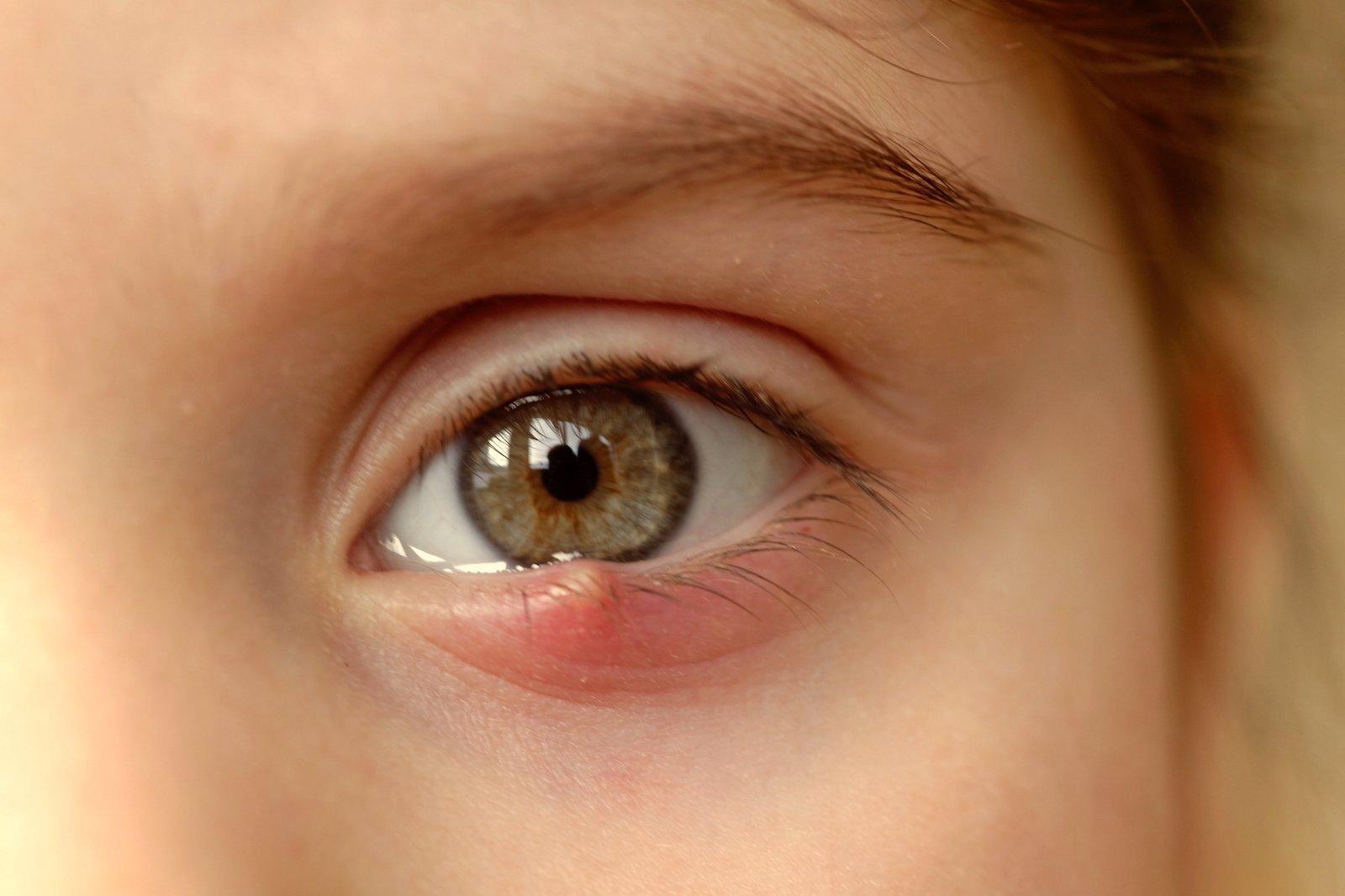arsuri în ochi; vedere încețoșată)