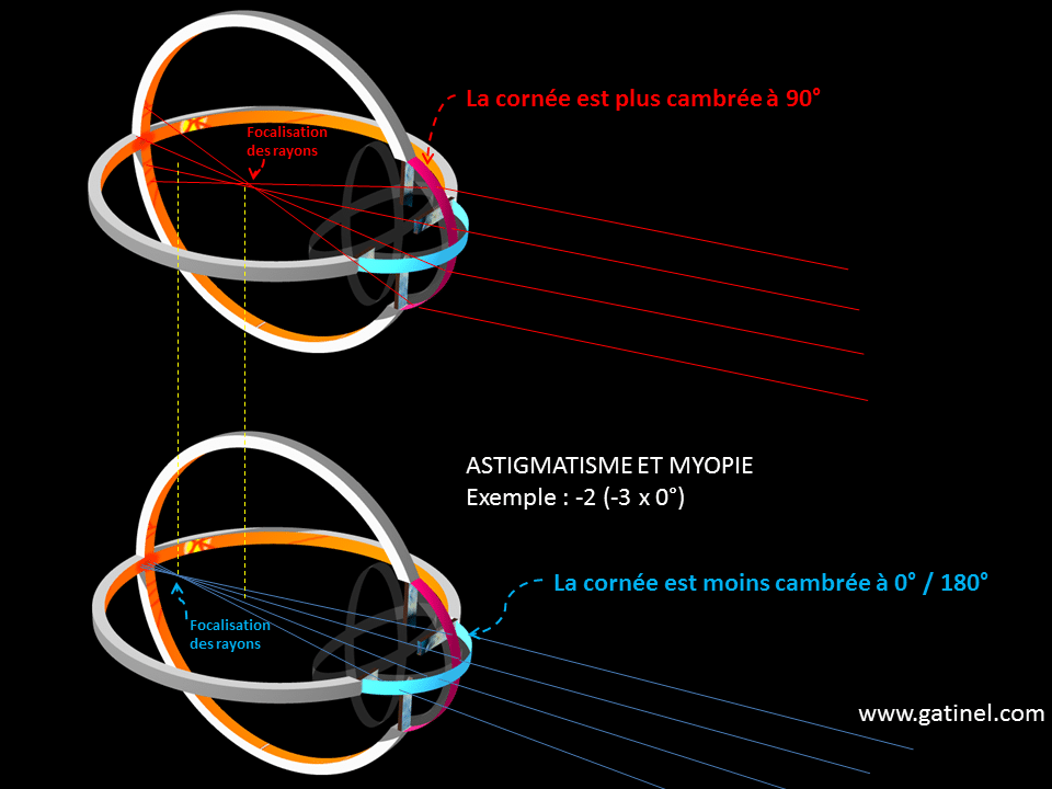 miopie contra canale lacrimale de vedere