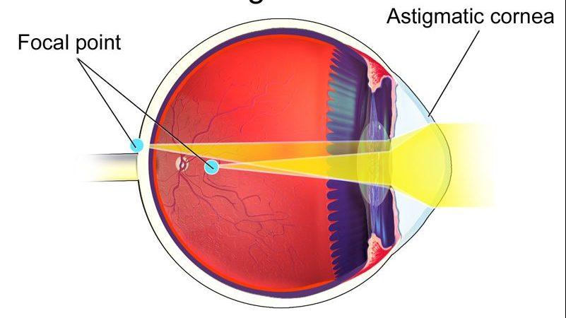 afecțiuni tratabile fără intervenții chirurgicale – Despre ochi