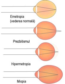 vederea se numește normală dacă scăderea vederii după 45 de ani