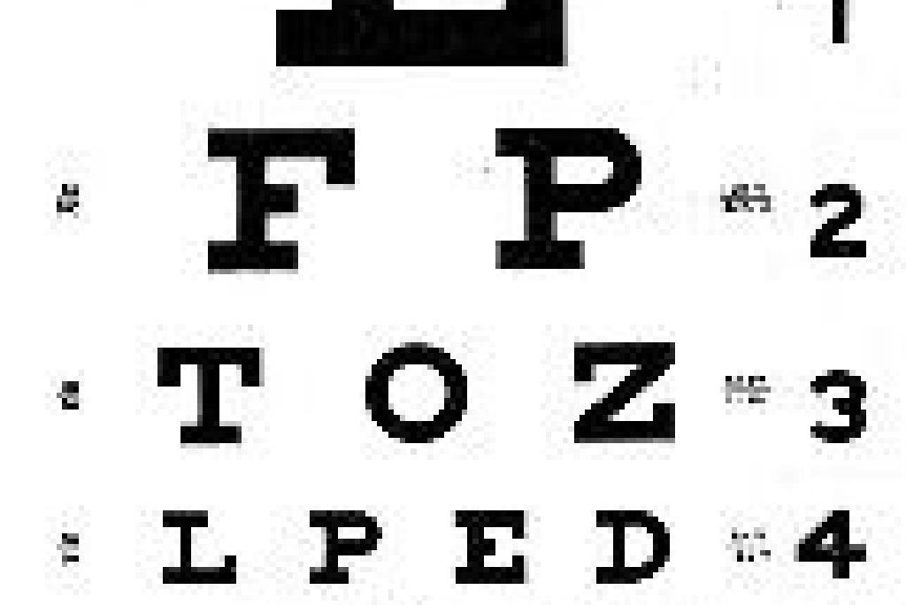 viziunea 20 ce înseamnă teste pentru dezvoltarea vederii