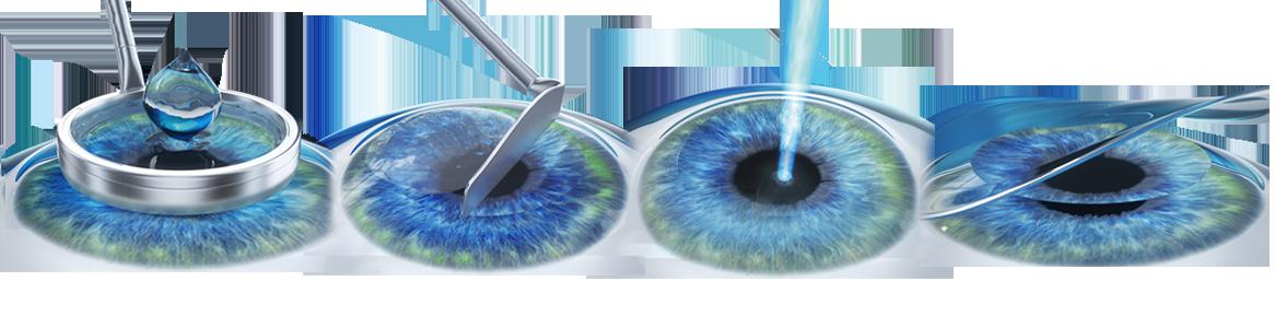 miopie ochiul drept