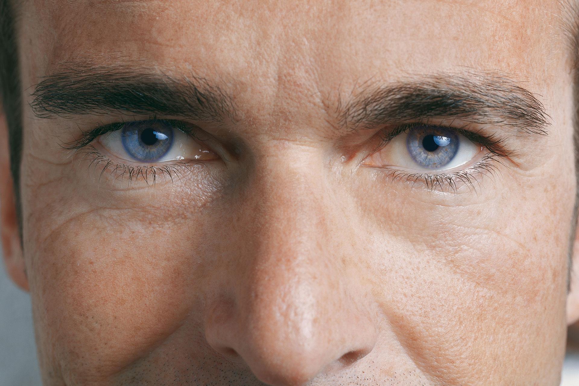 Ambliopia sau ochiul lenes - Dr. Marioara Pop