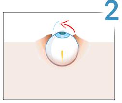 Consecințele intervenției chirurgicale pentru restabilirea vederii