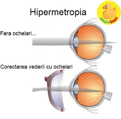 viziune - diferență între miopie și hipermetropie
