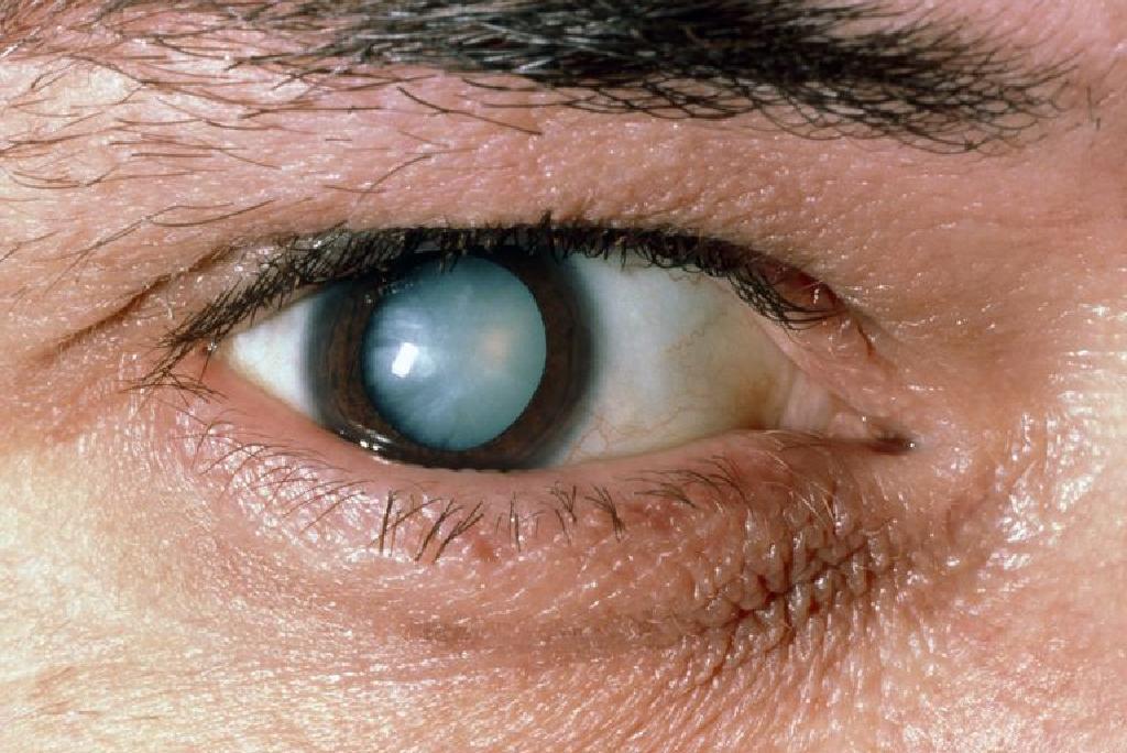 Operatia de cataracta   Clinica Novaoptic