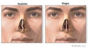 curgerea nasului a căzut vederea