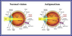 test ocular online pentru astigmatism