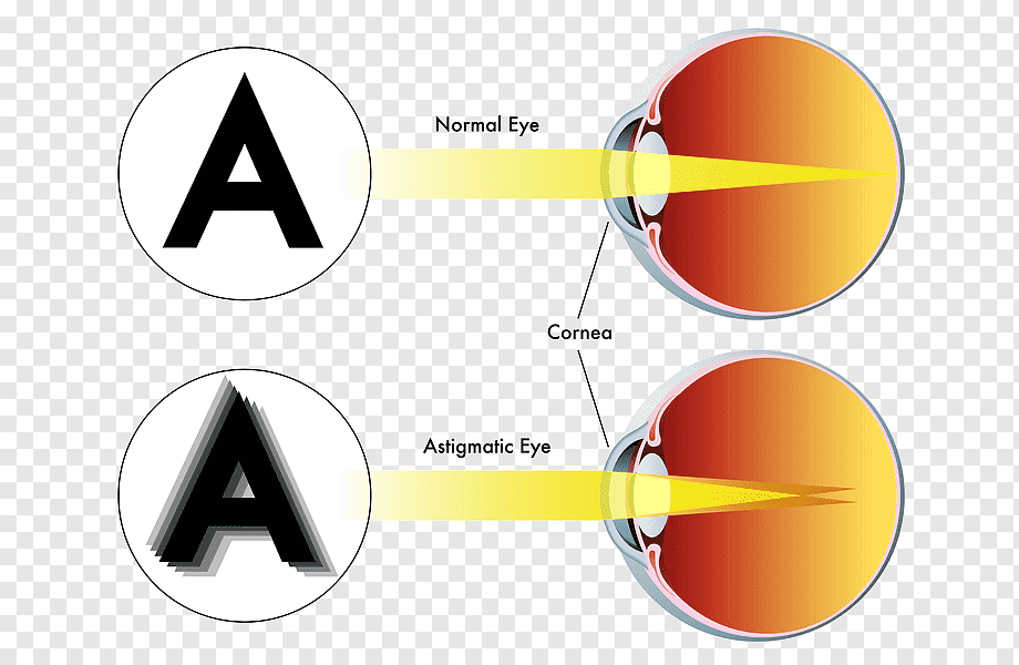 miopic astigmatism