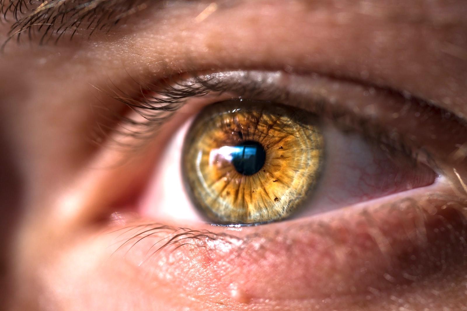 vederea s-a deteriorat, ochii sunt tulburi