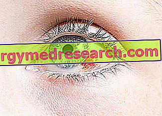 diverse boli oculare