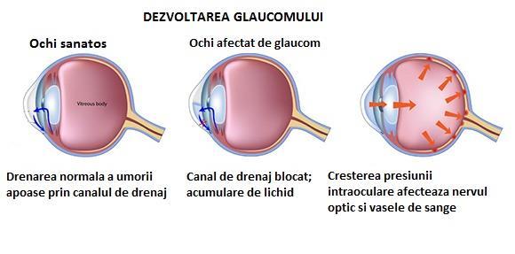 diagramă de testare a vederii adulților