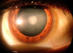 vedere încețoșată în fața cercului ochilor)