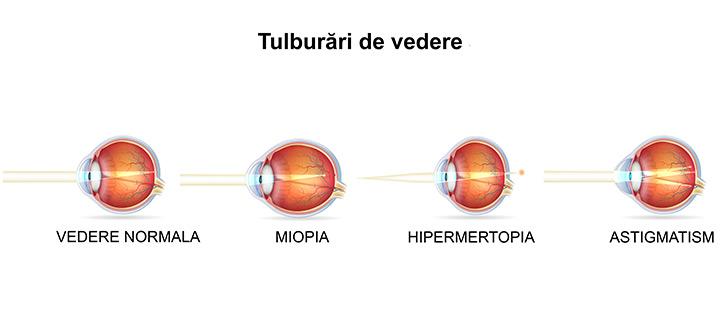 vedere normală și hipermetropie