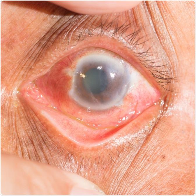 Testele prin care se depisteaza si se monitorizeaza glaucomul
