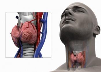 hipertiroidism și vedere