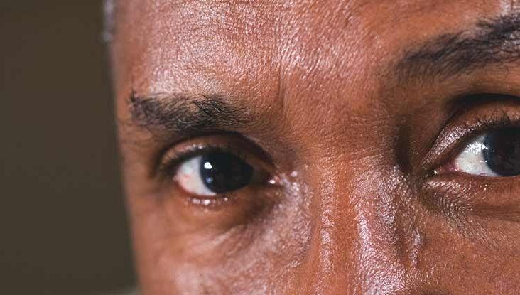 RP care efectuează testul ocular