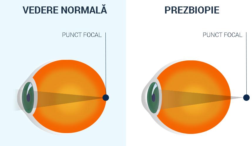 Miopia sau hiperopia cu vârsta
