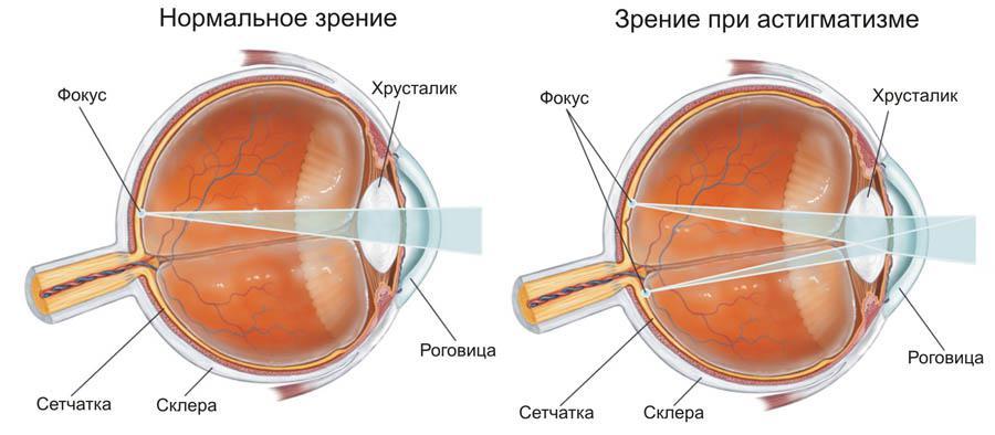 miopie, dobândită sau congenitală)