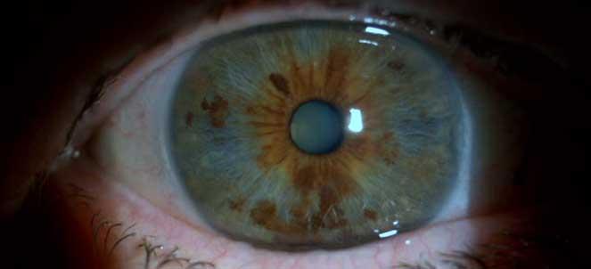 Gimnastica ochilor cu presbiopia senilă