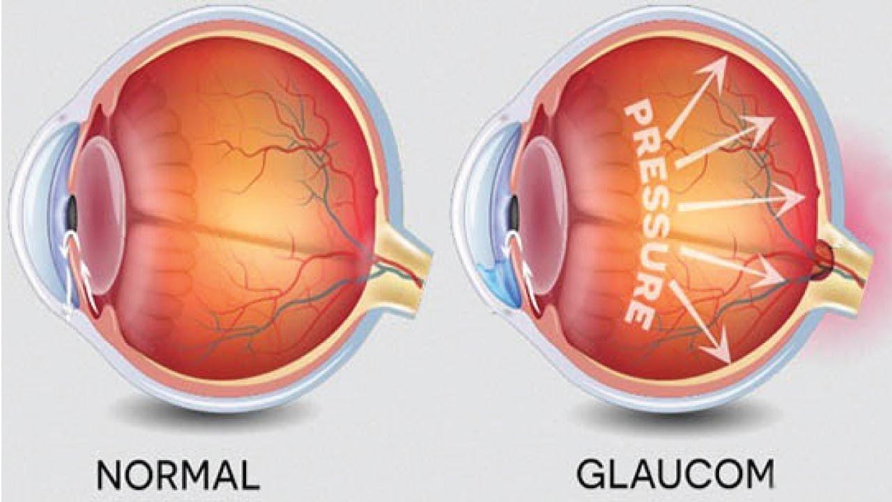 glaucom-vedere dublă)
