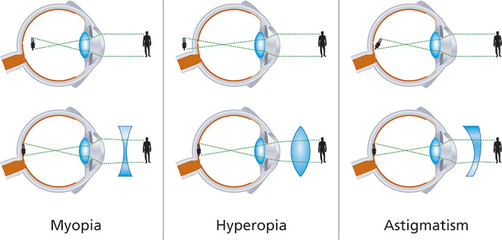 miopia - vindecare cu ochelari de hipermetropie?