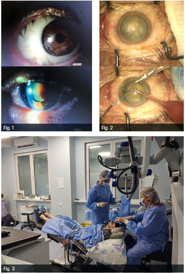 exercițiu de vedere fără ochi deteriorarea vederii cu tratamentul de vârstă