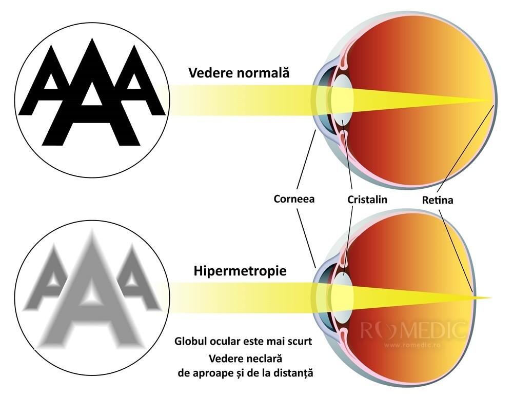 Hipermetropie - simptome și tratament