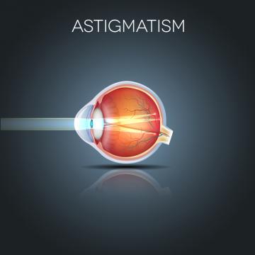 chirurgia vederii astigmatism)