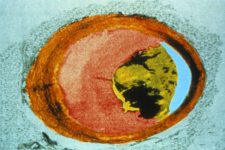 arterele vizuale îngustate