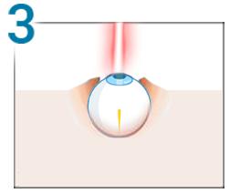 test de miopie sau hipermetropie