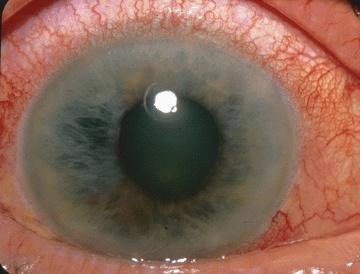 îmbunătățirea vederii oculare cu un laser