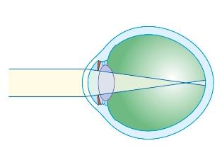 diagramă de testare a miopiei)