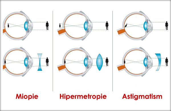 astigmatism cu laser și miopie