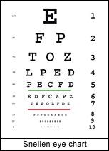 test ocular optician)