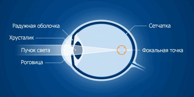 cum se restabilește vederea după operația lasik