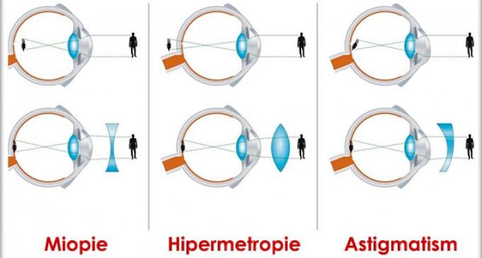 care este diferența dintre hiperopie și miopie