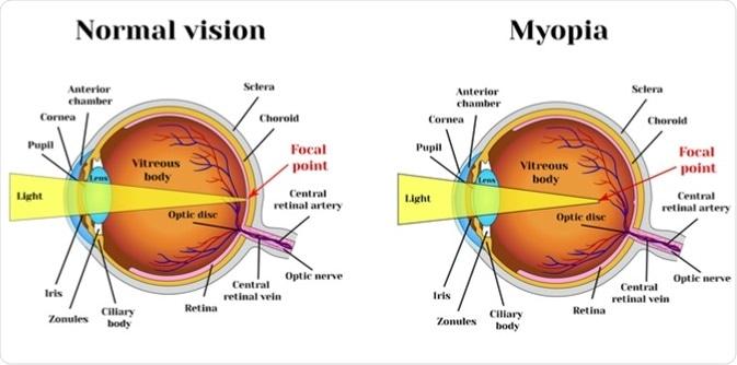 miopie genică cât de slabă vedere apare