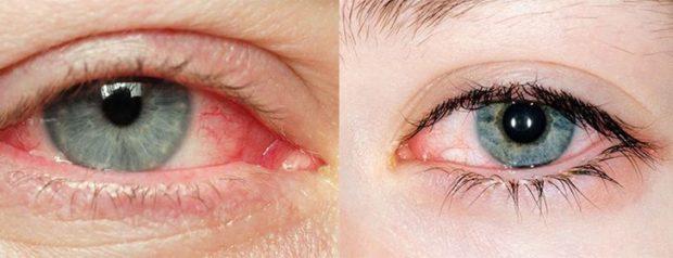 masaj pentru ochi pentru tratarea vederii