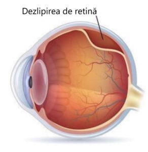 vedere încețoșată într-un diagnostic ocular