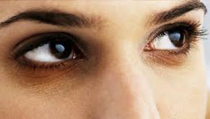 boală de ochi asupra mea)