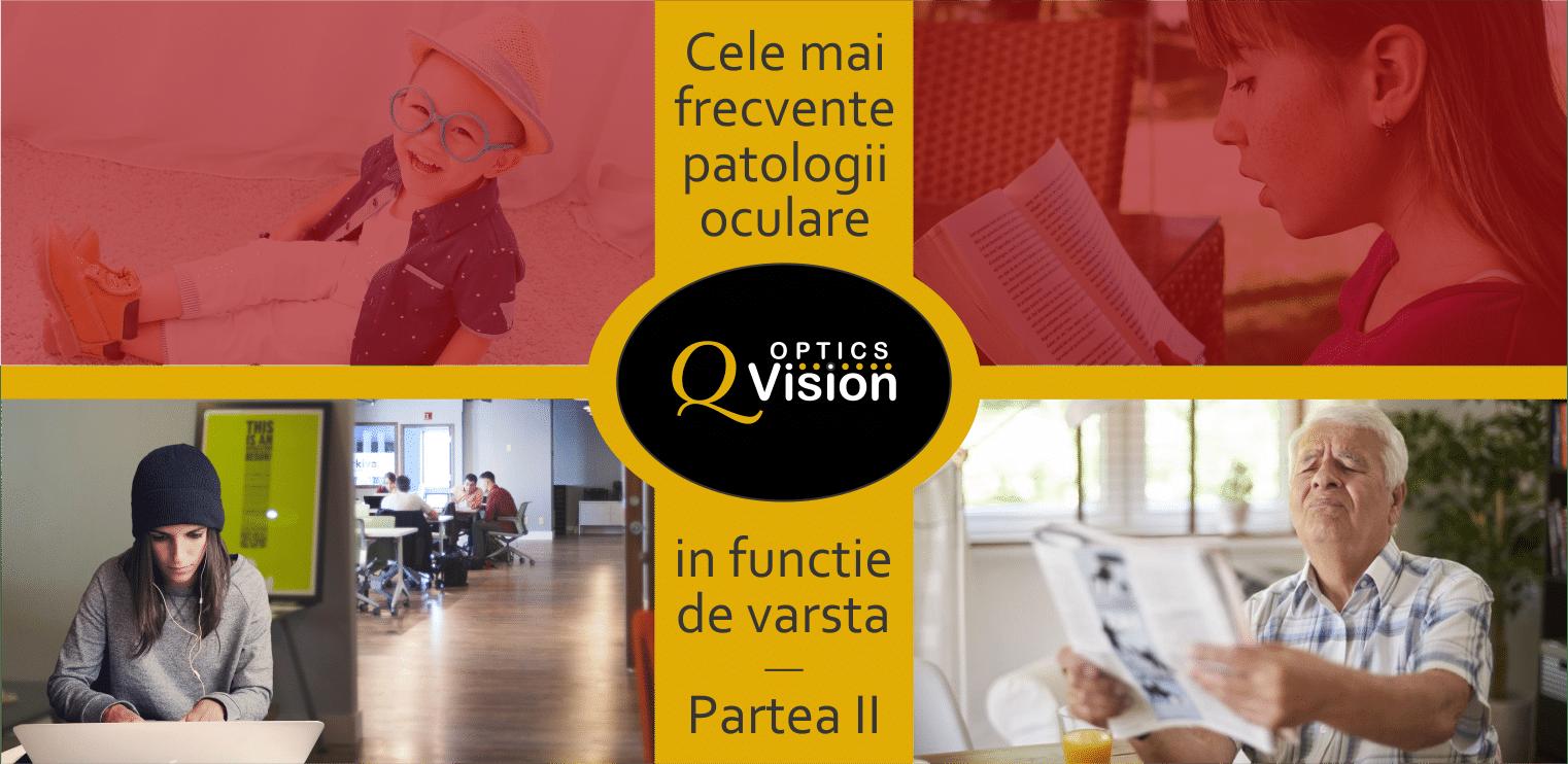 Cataracta senila - boala ochiului batran - simptome si tratament - mrini
